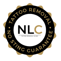 Tattoo Removal No Sting Guarantee by Next Level Clinic