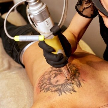 Tattoo Removal large size